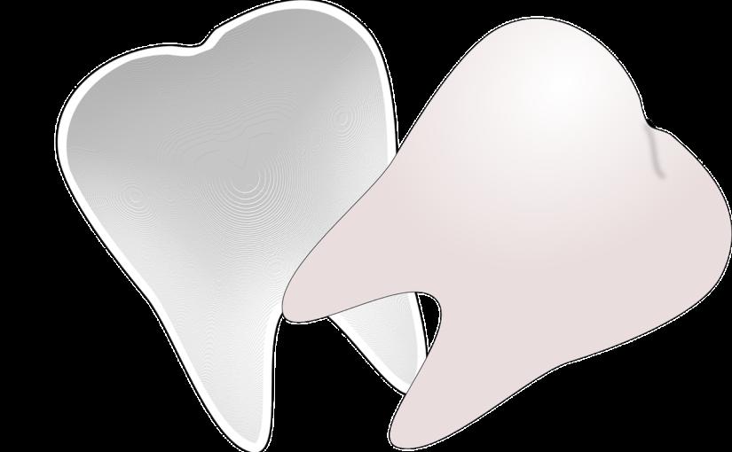 Przepiękne zdrowe zęby dodatkowo efektowny przepiękny uśmieszek to powód do dumy.